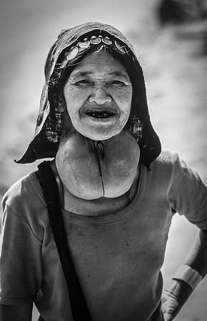Goiter Woman