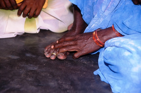 Fingers and Toes, Kanchipuram, India