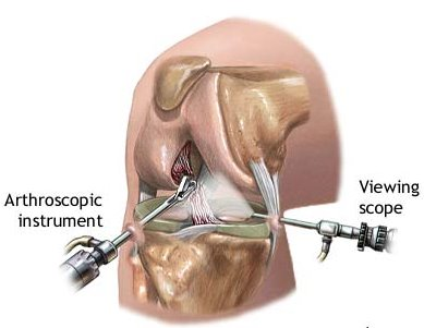 Basic setup for performing arthroscopic knee surgery.