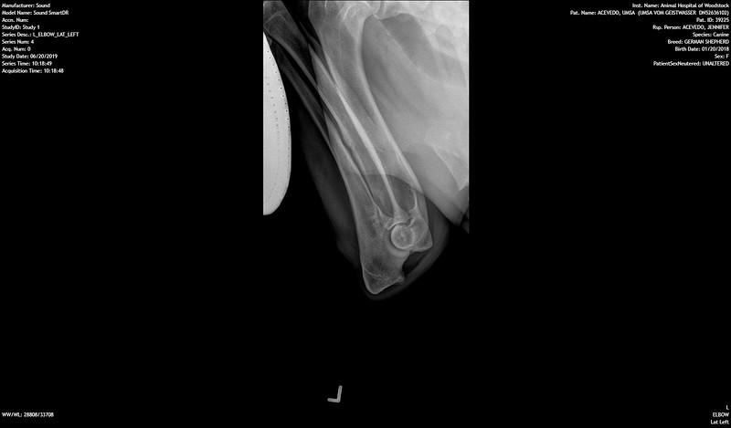 OFA prelim<br /> Left elbow normal<br /> June 2019