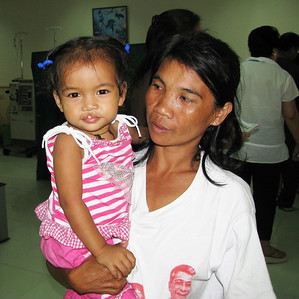 A kid with a cleft before surgery.