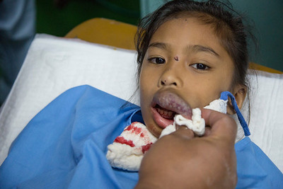 A girl with a hemangioma of the upper lip, pre-op.