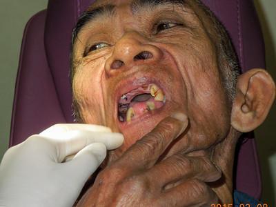 Bad teeth, by Pecson
