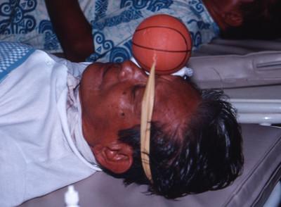 Pressure on the eye post cataract.