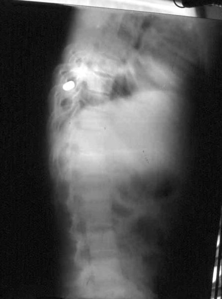 My first case in the Philippines: a gunshot wound to the abdomen 20 hours old. We jury-rig a chest tube with suction, and I open his belly.  The bullet has perforated the esophagus and has penetrated the vertebral body. He's lucky, his spinal cord is uninjured. I leave the bullet in. One week later, he's doing fine, but I leave for home and never find out whether he ultimately survives.  It's been 18 years.  He'd be about 42 now.