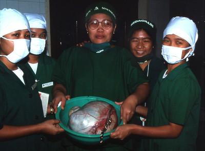 An ovariar cyst.