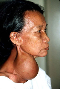 A typical goiter.
