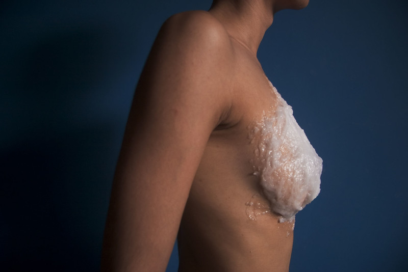 implant II, 2006<br /> archival pigment print <br /> 28 x 40 inches (70 x 100 cm)