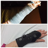 When it came time to saw off the cast, my wrist was healing too slowly, so this high tech brace replaced it.  It was  heated and molded to my wrist before it cooled and hardened. The button on the top controls the lacing for removal. It also allows me to type and knit again. It's been quite an interesting experience and not one I'm eager to repeat.  :-)  September, 2015.