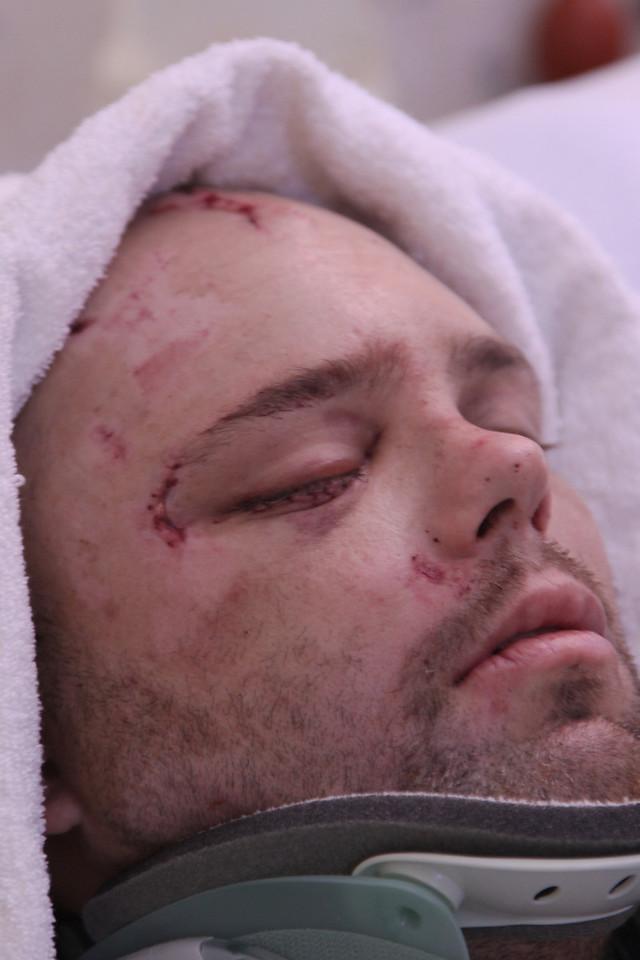 David After Surgery