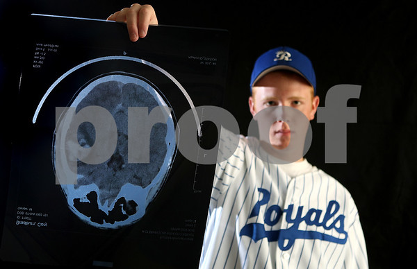 Rob Winner – rwinner@daily-chronicle.com<br /> Cory Bradburn holds up a CT scan of his head which shows swelling on his right side. Bradburn suffered a blow to the head while taking batting pratice at his home in Hinckley back in May.<br /> 07/01/2009