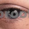 Kyle Bursaw – kbursaw@daily-chronicle.com<br /> <br /> Lindsay Druck discovered she had retinal detachment during a routine eye exam.