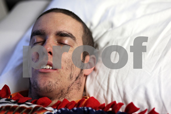 Beck Diefenbach – bdiefenbach@daily-chornicle.com<br /> <br /> After repeatedly rubbing his face, only splotches of hair are left on Kevin's face as he rests in his hospital bed at the University of Chicago Medical Center in Chicago, Ill., on June 20, 2009.