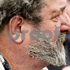 Beck Diefenbach  -  bdiefenbach@daily-chronicle.com<br /> <br /> Burnt hair and skin is seen on Chauncey Watson's face after his home exploded in flames, blowing him several feet in rural DeKalb, Ill., on Friday April 30, 2010.