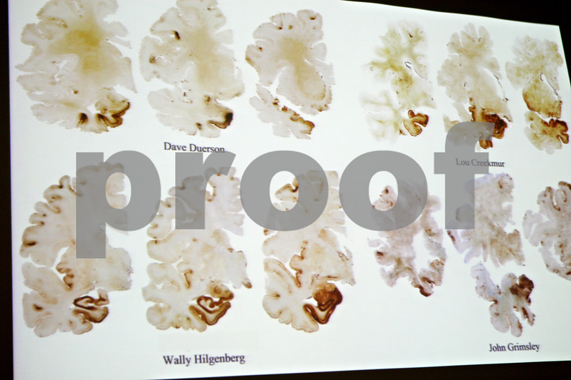 Rob Winner – rwinner@shawmedia.com<br /> <br /> An image containing coronal slices of former NFL players that suffered Chronic Traumatic Encephalopathy was shown during an advanced concussion training seminar presented by the Sports Legacy Institute at Sycamore High School Friday night. Repetitive concussions and sub-concussive hits are linked to the degenerative brain disease CTE.