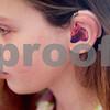 dnews_0221_cochlear_implant2.jpg