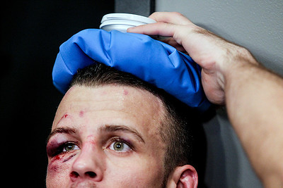 Sarah Nader- snader@shawmedia.com Pat Curran, who trains in Crystal Lake, ices his head in his dressing room after fighting Daniel Straus of Cincinnati during the Bellator MMA 112 featherweight world title bout Friday, March 14, 2014 at Horseshoe Casino in Hammond, Ind. Curran won the fight.