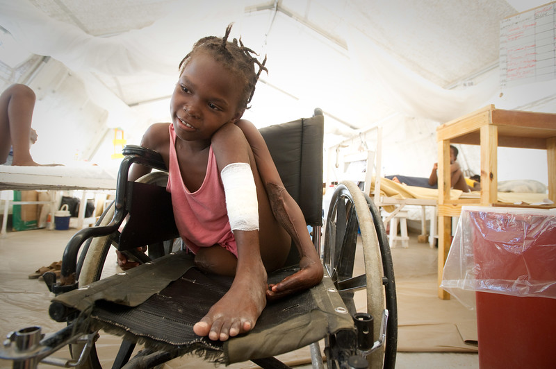 Port Au Prince, Haiti.  Wednesday, July 1, 2010.  //Mirlanda Pierre, 12, is fitted for a Prosthetic leg at Handicap International in Port Au Prince, Haiti. At left s her father Mirto Pierre and at right is Alex from El Salvador. Mirlanda was pulled from the rubble of a neighbor's house three days after the earthquake. She and her father have been at MSF  (Medicine Sans Frontiers) field hospital in Delmas 31 ever since as she sustained injuries which included the loss of her leg and the loss of use of her left hand.  She is one of many residents of Port Au Prince receiving aid for injuries at Handicap International, which has had a presence in Haiti since before the earthquake but has stepped up its presence considerable in the wake of the earthquake. Many of its patients who have lost limbs are healing up to the point where they can be fitted for more permanent prosthetics. Port Au Prince, Haiti, //
