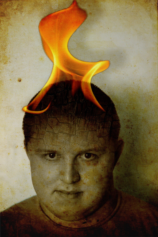 Burned... 155/365 7/5/13