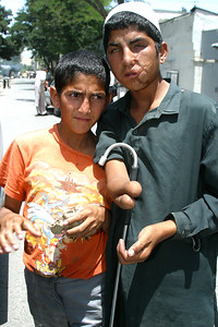 Landmine victim and his brother beg for food on the streets of Kabul.