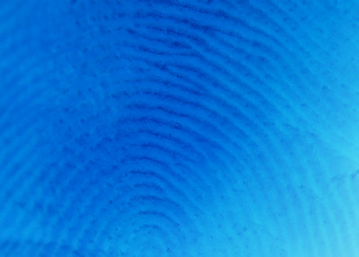 radial pattern 09567
