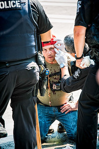 A bloodied Trump supporter looks my way while a Seattle police officer tends to his wounds.