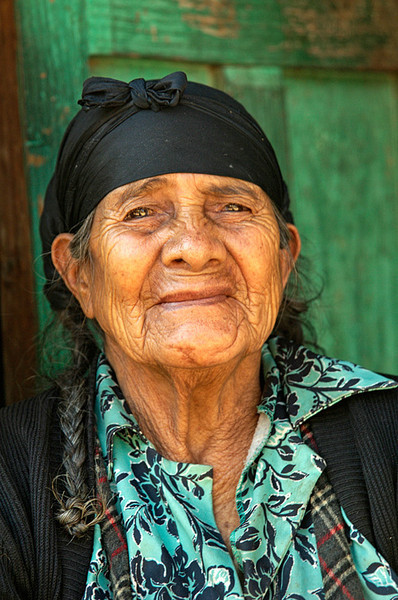 #118 Woman with Cataracts, Nebaj, Guatemala