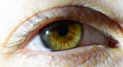 Berni's eye