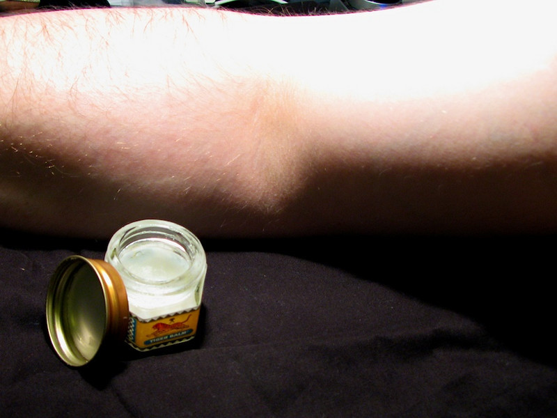 Day 14<br /> <br /> Youch.. tennis elbow - too much thrashing of the ball and badly hit shots. No excuse for this though, it's of my own doing - the only solution is tiger balm - ahhh sweet burning sensation. <br /> <br /> Call me weird but I love the smell of it. <br /> <br /> Dissappointingly it's not made from real tigers <br /> <br /> (yes, dear PETA members I am kidding).