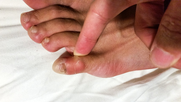 JANUARY - Serious blisters to start the year