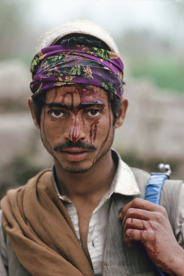 """<font size=""""3""""><font face=""""arial"""">Afghan fighter outside Jalalabad wounded fighting against government forces, Jalalabad, Afghanistan, 1988,"""
