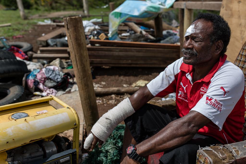 Asivorosi Tarakinikini suffered multiple injuries to his hand, head and back when his house was blown down the hill by Cyclone Winston. Nasaibitu village, Nayavu district, Viti Levu, Fiji.