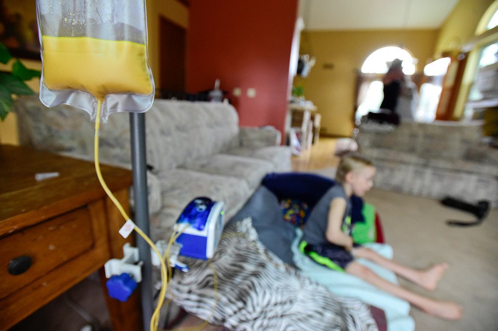 . Riley Heasley, 8, watches TV as a feeding tube slowly drips his breakfast into his stomach in Longmont on Aug. 11, 2017. Riley has Pantothenate Kinase-Associated Neurodegeneration, a rare inherited neurological movement disorder, and is unable to walk or talk. (Photo by Matthew Jonas/Times-Call)