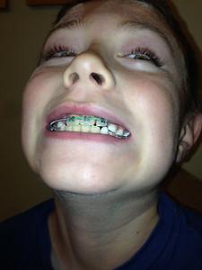 092314_Teeth-1
