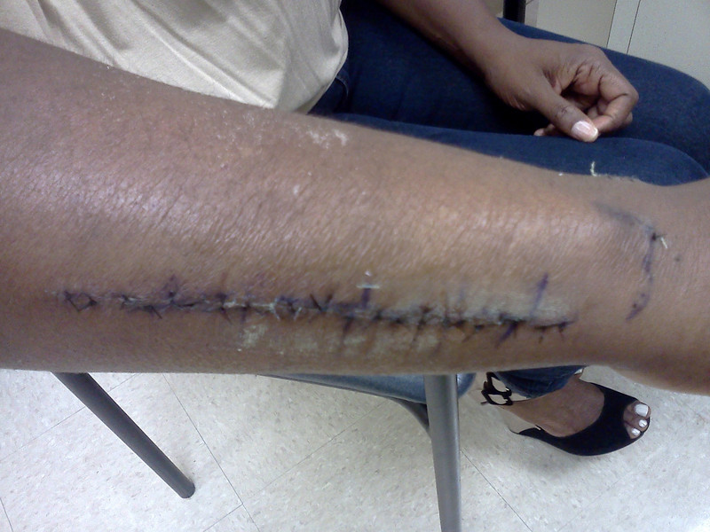 The day the staples came out.....awaiting stiches to dissolve.. i could not bring myself to look at this until 1 month after healing.