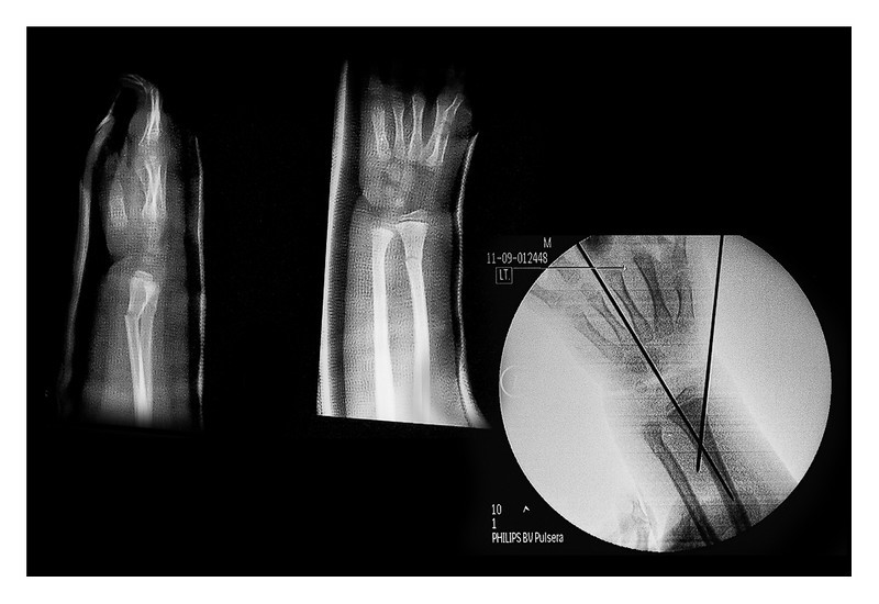 Wed 28 July - X Ray<br /> <br /> Off to Sweden today...we thougth ! Mika went in to check up his arm and result was that it had not started to heal correct, so needed to redo again. This time they put in two metal needles to fixture the bone in correct postion. Now we wait another week and then hopefully it looks better and we can go. Mika is so looking forward to Sweden and was so dissapointed...<br /> <br /> On the left you see the bone after check up. Looking from one side its straight, but from another direction is not connected. Right side you see how they fixtured it by putting the metals into the bone. These will be removed some 3 weeks later
