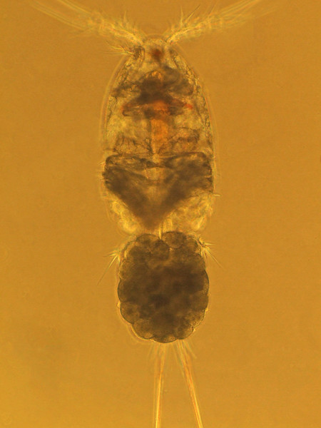 Female harpacticoid (?) copepod with characteristic single egg sac attached medially.