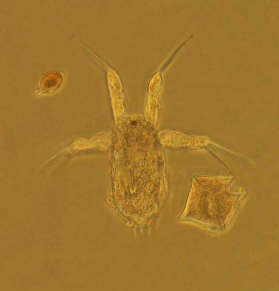 Copepod nauplius with two dinoflagellates
