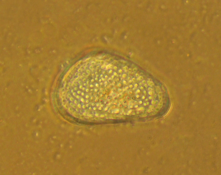 Ostracod <br /> A sculpted shell with pores and tubercles indicates that this animal is associated with benthic vegetation.  Pelagic or sand-dwelling species have smooth valves.
