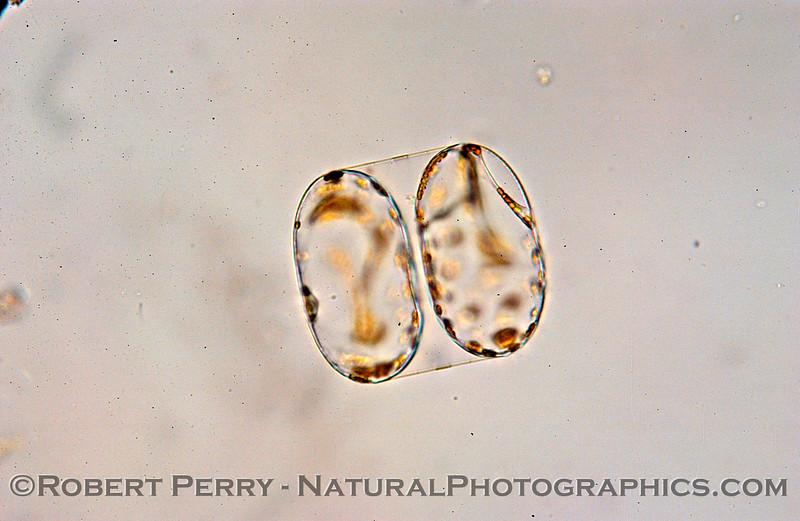 Coscinodiscus granii SIDE 2004 11-29 Zuma-303