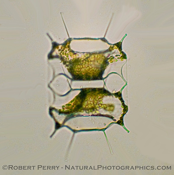 Biddulphina mobiliensis DIATOM 2010-02-11 Zuma Plankton - 003