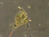 Dinoflagellate Motility