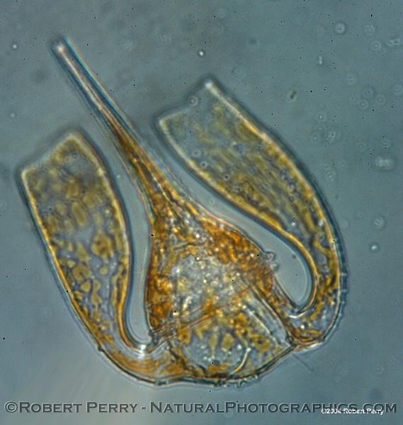 Ceratium platycorne Zuma_Nano_2004_12-05--089