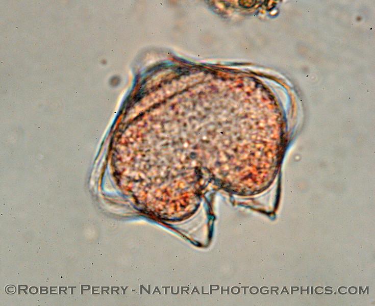 Protoperidiniium Zuma_Nano_2004_12-26--217