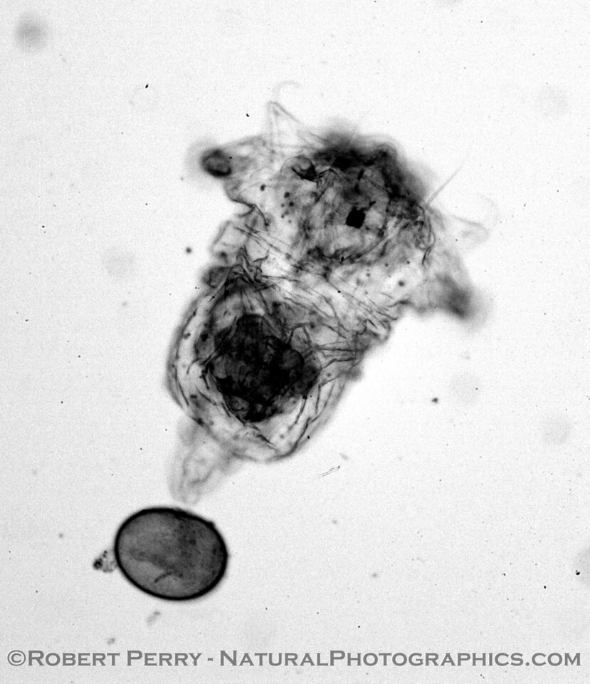 rotifer towing egg B&W_Zuma_2005-03-11-039
