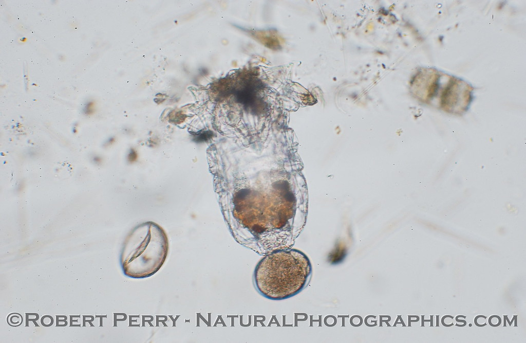 Rotifer with egg 2006 02-02 Zuma-005