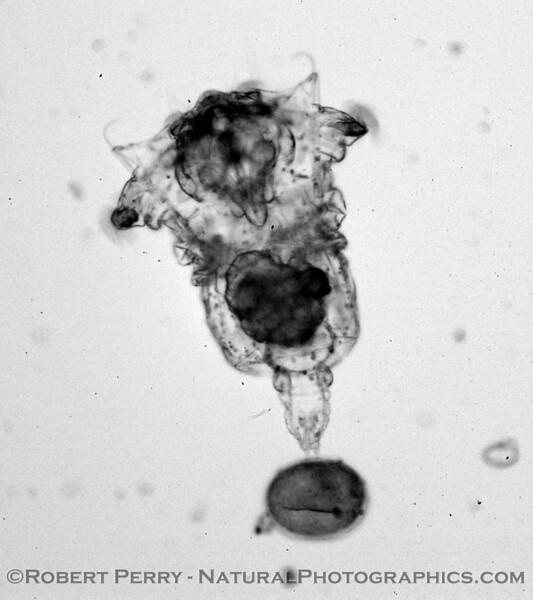 rotifer towing egg B&W_Zuma_2005-03-11-041