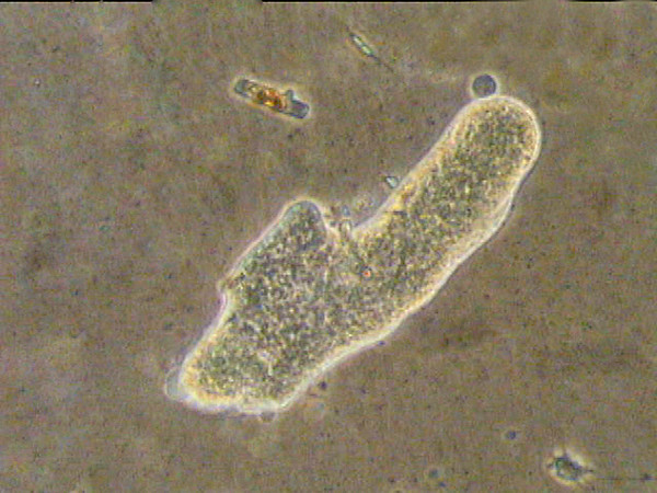Amoeba and two diatoms above
