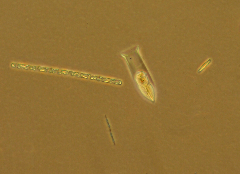 Tintinnid and three diatom species