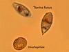 Tintinnid and dinoflagellate